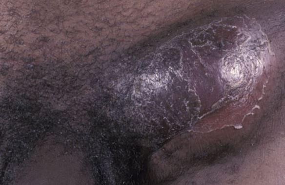 blue-waffle-disease