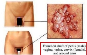 blue waffle disease picture