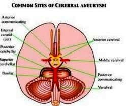 common sites of brain aneurysm