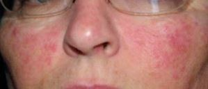 fungal rash on face