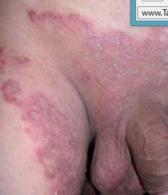 Fungal rash on groin