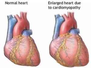 postpartum cardiomyopathy