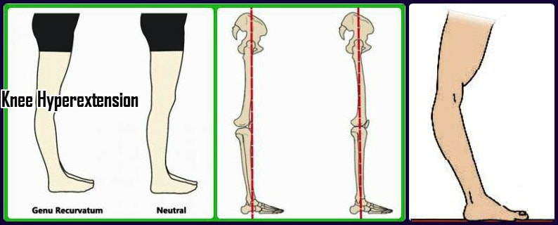 Genu recurvatum knee hyperextension