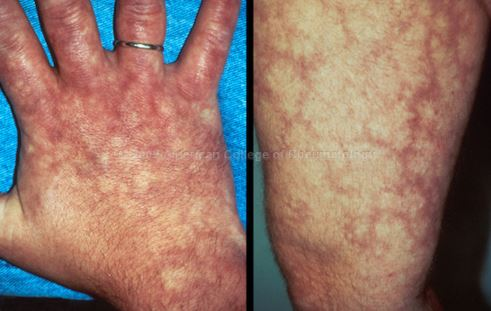 Livedo Reticularis on hands