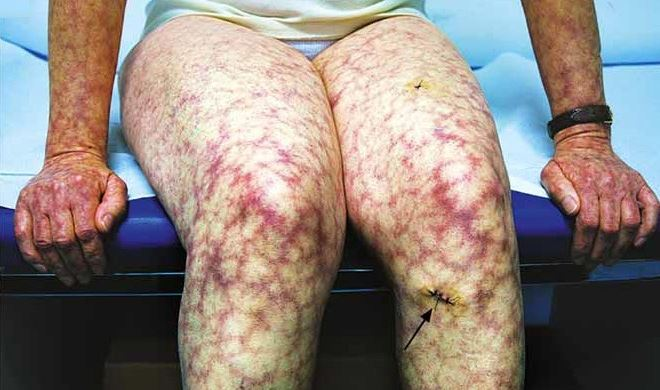Amantadine Poisoning Dialysis