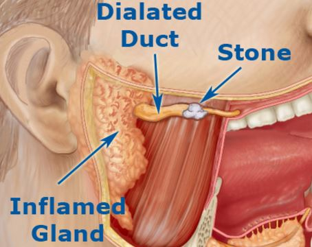 blocked salivary glands stone inflamed duct
