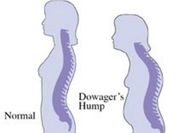dowagers hump