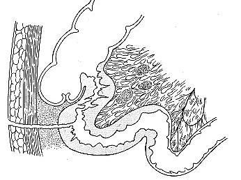 enterocutaneous fistula diagram