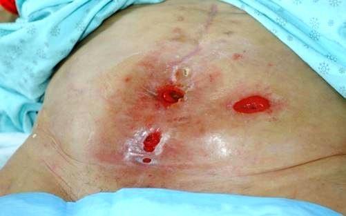 enterocutaneous fistula picture