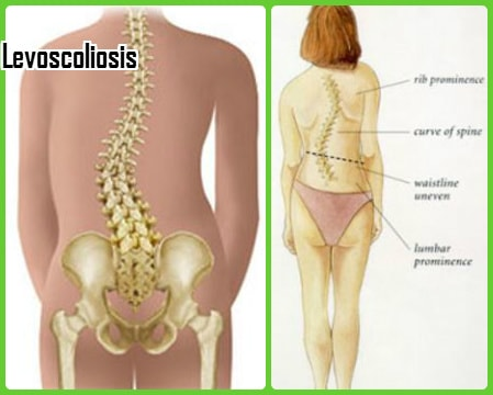 levoscoliosis symptoms picture