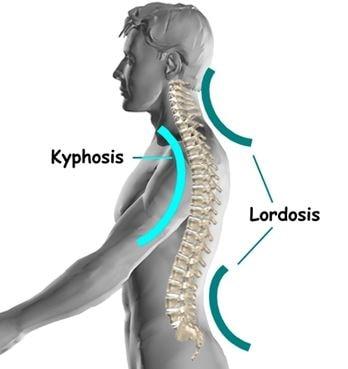 lumbar lordosis image