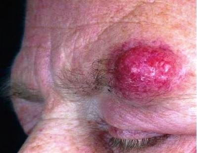 merkel cell cancer on head