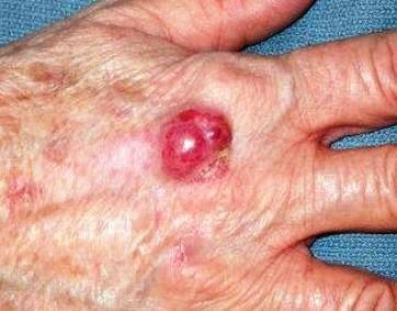merkel cell carcinoma on hand