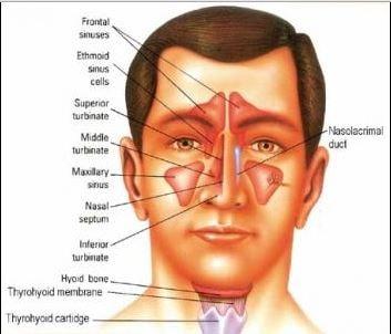 Pansinusitis - What is?, Treatment, Surgery, Symptoms, Acute  Pansinusitis