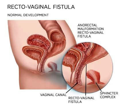anal fistula symptoms and photos