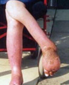 reflex sympathetic dystrophy legs