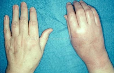 Reflex Sympathetic Dystrophy Pictures Treatment Symptoms