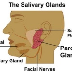 Blocked Salivary Glands