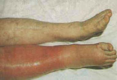 superficial thrombophlebitis photo