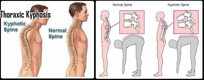 thoraxic kyphosis image