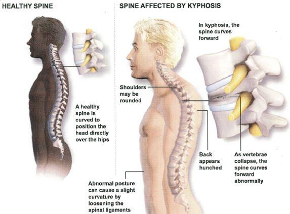 Thoracic Kyphosis symptoms signs