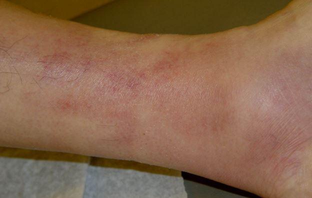 thrombophlebitis photo