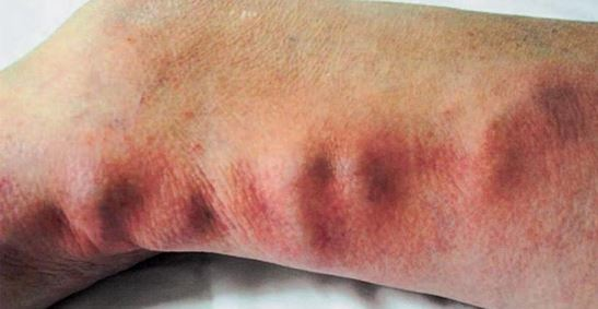 thrombophlebitis picture