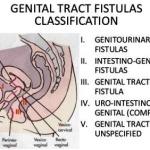 Vaginal fistula