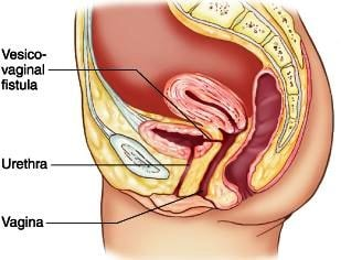 location of anal fistula jpg 422x640