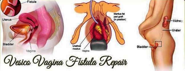 vesicovaginal fistula repair