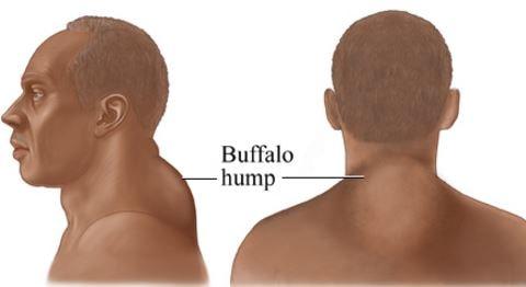 buffalo images