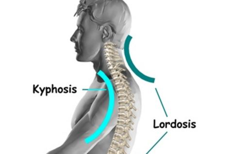 cervical lordosis images