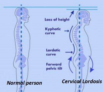 cervical lordosis symptoms