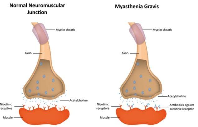 cholinergic crisis myasthenic crisis