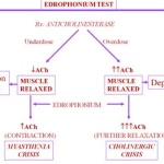 Cholinergic Crisis