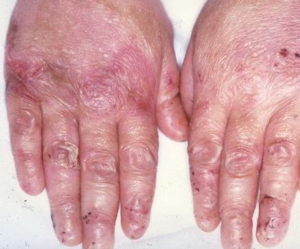epidermolysis bullosa images