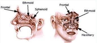 nasal sinuses pansinusitis