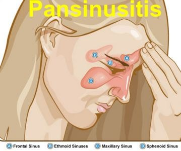 pansinusitis picture