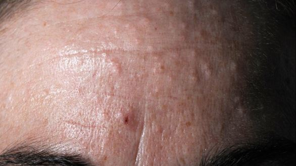 sebaceous hyperplasia on frontum picture