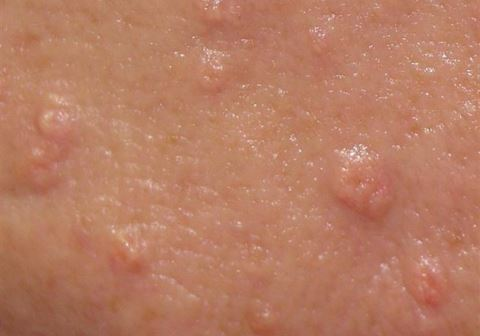 sebaceous hyperplasia pictures 2