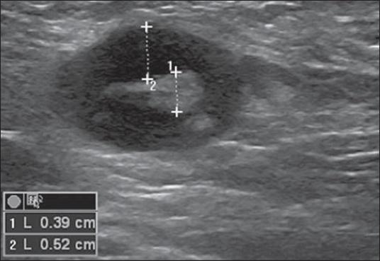 enlarged axillary lymph nodes in CT scan