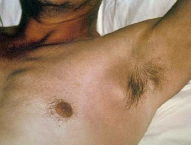 enlarged axillary lymph nodes - lump in armpit
