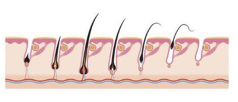 Ingrown Pubic Hair location