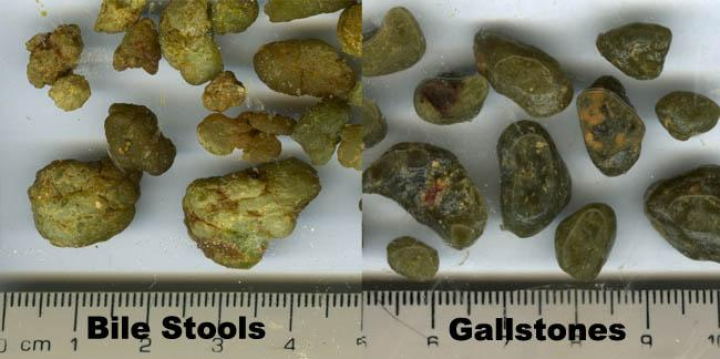 What Causes Green Stools Gallstones vs bile stools