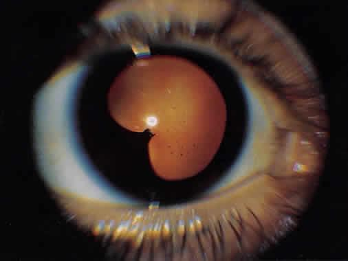 Right eye of patient with uveitis showing localized area of posterior synechiae