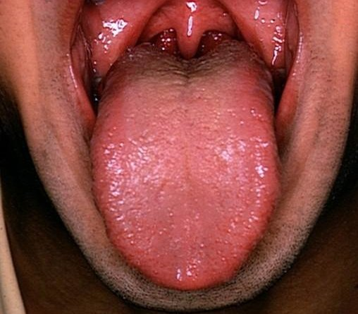 C:\Documents and Settings\TK\My Documents\enlarged-tonsils.jpg