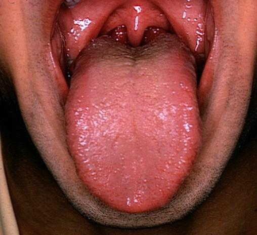 are tonsils infection