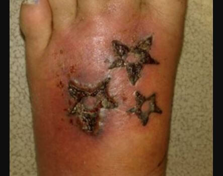 Infected tattoo on foot