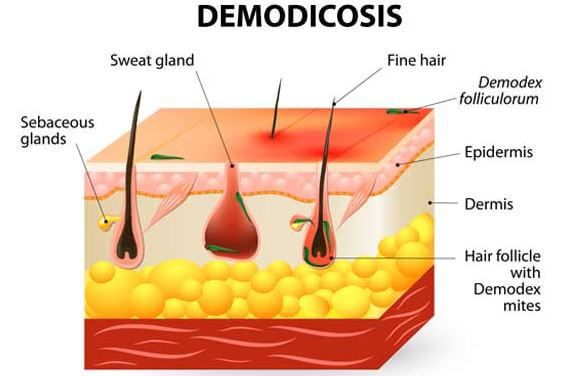 Demodicosis with hair follicle anatomy