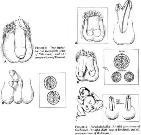 Diphallia Anatomy
